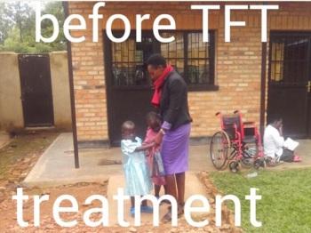 Before TFT: Izere Center, Rwanda